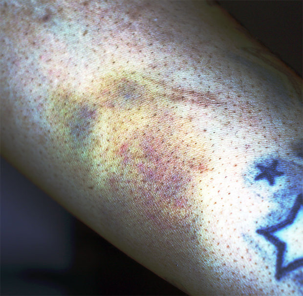 CortexFlo Contrast Filter Applied Patterned Injury Contusion with Ecchymotic Spread
